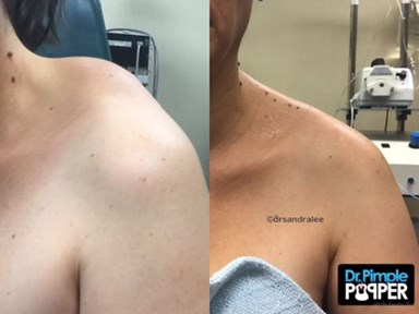 Watch Dr. Pimple Popper remove a melon-sized mass from this woman's shoulder