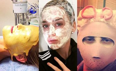 21 wild and weird celebrity beauty treatments