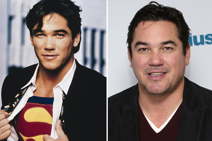 <strong>Dean Cain</strong> So, ah, Dean Cain and his cheekbones, played Superman. Now he's been attached to an upcoming TV series based on the show called Supergirl.