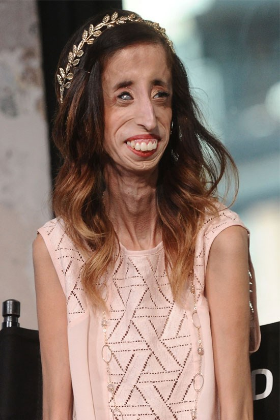 <strong>Lizzie Velasquez</strong> <br><br> Lizzie Velasquez is an American author and motivational speaker. Velasquez has used her own personal experience with a rare congenital disease to fight bullying across America, and has recently been lobbying for an anti-bullying legislation.