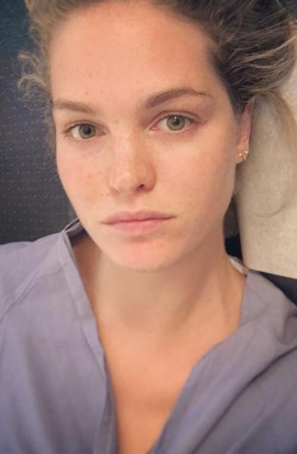 Erin Heatherton Freckles