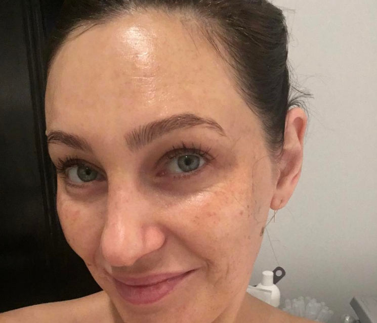 Dermaplaning: Should You Be Shaving Your Face? | ELLE Australia