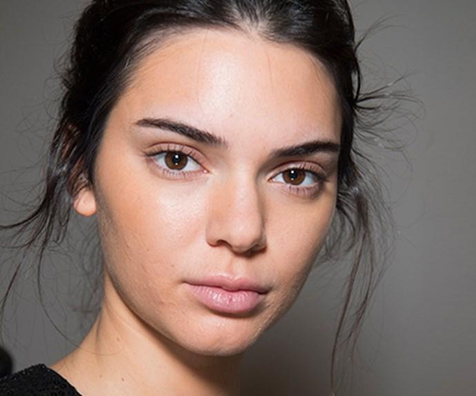 kendall jenner skin acne