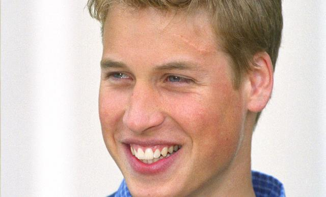 Prince William Got A Real-Life Harry Potter Scar In The Most English Way