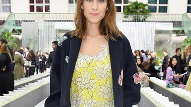 Alexa Chung Opens Up About Her Struggle With Endometriosis On Instagram