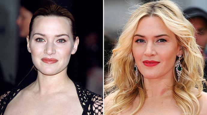 <strong>Kate Winslet</strong> <br><br>When it comes to ageing, the flawless Kate Winslet has been plenty vocal about her avoidance of botox and surgery, preferring a more natural approach to ageing. <br><br>The 39-year-old Oscar winner swears by an anti-ageing, antioxidant-packed skincare regime and plenty of sunscreen as the secret to her flawless peaches-and-cream complexion.