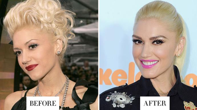 <strong>GWEN STEFANI</strong> <p><p> Stefani was the ultimate queen of the skinny brow. In 2017, the singer/actress/designer has moved toward thicker and longer brows.