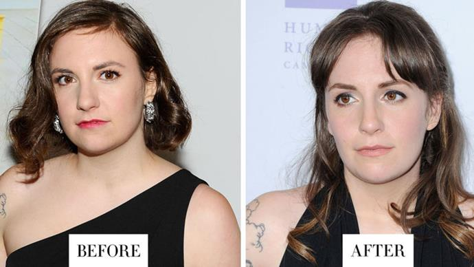 <strong>LENA DUNHAM</strong> <p><p> Dunham has recently confessed her love for microblading, a semi-permanent brow tattoo procedure. Her brows appear less sparse but still totally natural.