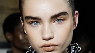 Buccal Fat Removal Is The Industry Secret To Chiselled Cheekbones