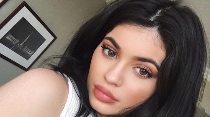 Kylie Jenner Lip Filler Dissolved
