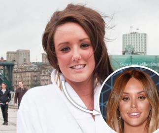 Celebrities surgery former faces megan fox jennifer hawkins charlotte crosby nicole scherzinger sharon osbourne