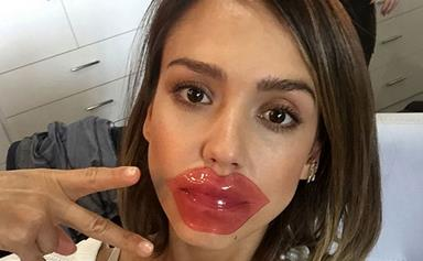 5 sneaky things causing your chapped lips