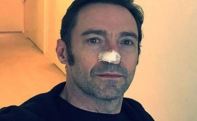 Hugh Jackman's latest cancer scare is a lesson to us all