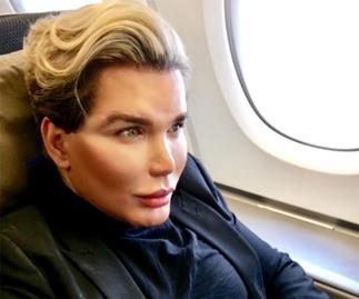 'Human Ken' Rodrigo Alves says his face 'peeled off in big lumps' after latest procedure