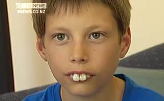 Teeth makeover