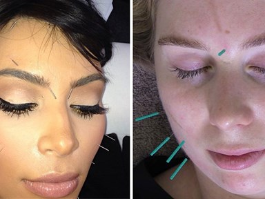 This is why you should let someone stick needles in your face
