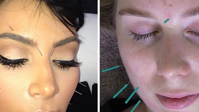 facial rejuvenation cosmetic acupuncture review Kim Kardashian