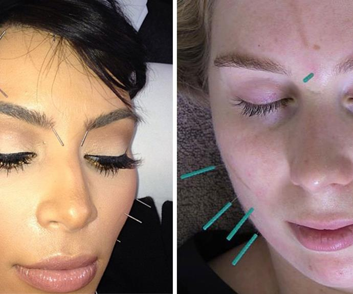 facial rejuvenation cosmetic acupuncture review Kim Kardashian