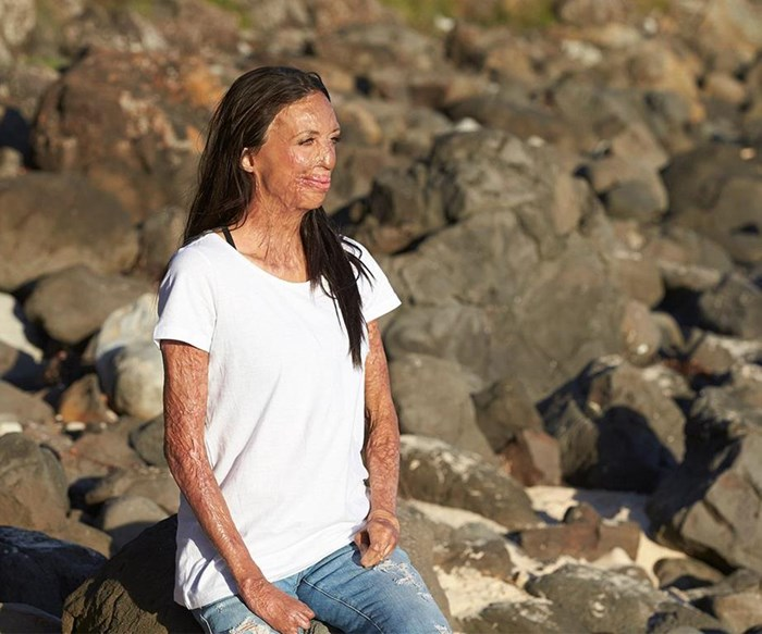 The boy who changed Turia Pitt's life