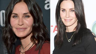 Courteney Cox feels like herself again after getting cosmetic fillers 'dissolved'