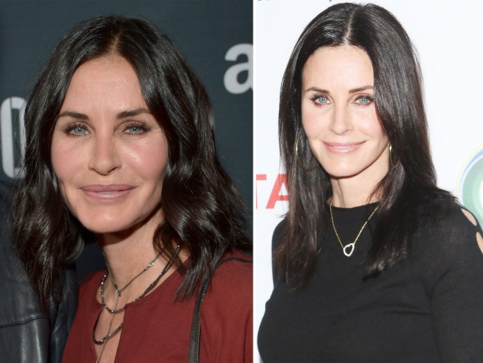 Courteney Cox got her fillers and Botox dissolved