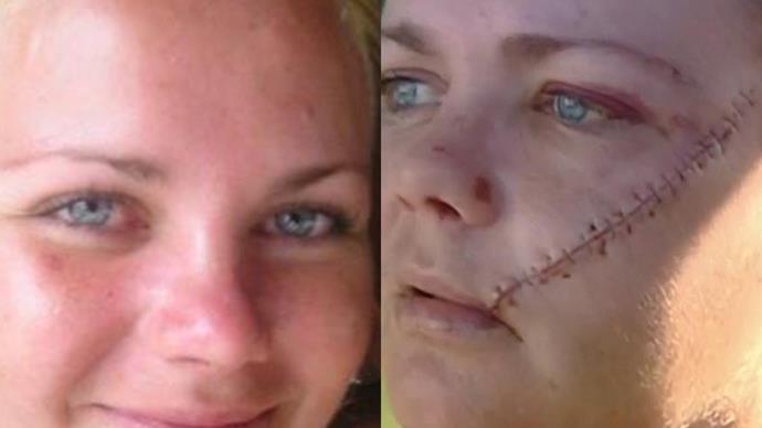 "Gold Coast mum recounts horrifying machete attack that left her face ""hanging off"""
