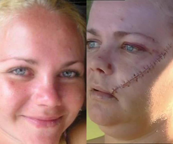 "Gold Coast mum recounts horrifying machete attack that left her face ""hanging off"""