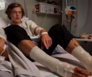 Melbourne teen 'eaten' by mystery sea creatures after going for a quick dip after footie