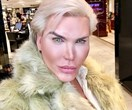 Human Ken Doll Rodrigo Alves is getting SIX ribs removed – this is what's medically WRONG with it