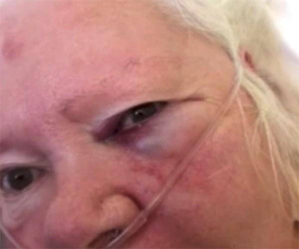 Nurse accused of hitting woman with a mug of Milo