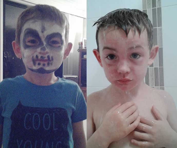 Horrified mum claims her child's face was 'severely burnt' from Woolworths Halloween face paint
