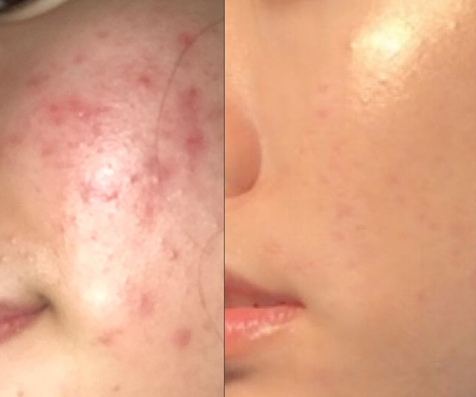 This woman cleared her acne on her own and now her skincare routine has gone VIRAL