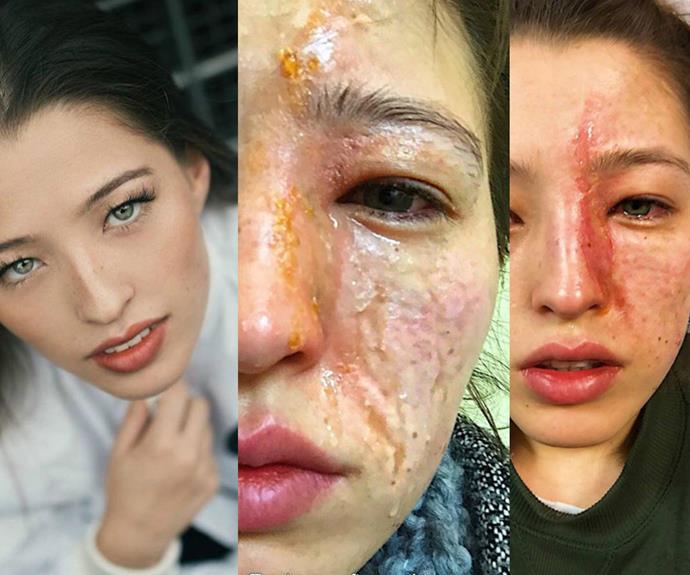 woman's face burnt by essential oil disffuser vapour