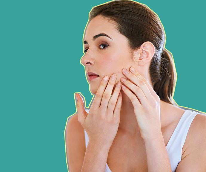 Q&A with Dr Pimple Popper: How to treat acne