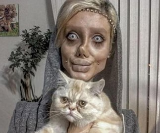 Iranian teenager surgery Angelina Jolie