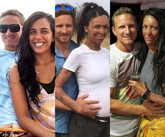 Turia Pitt and Michael Hoskin