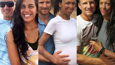 In pictures: New parents Turia Pitt and Michael Hoskin's love story