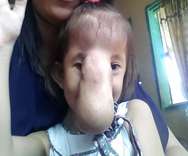 Angel's encephalocele nose growth
