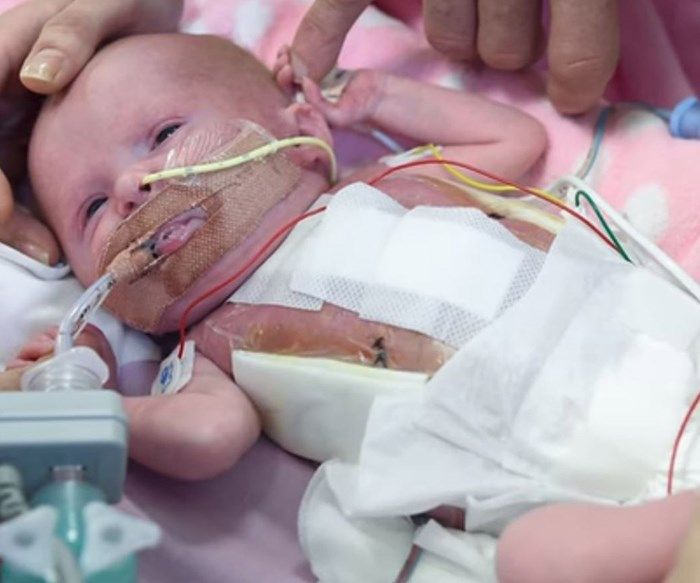 Baby girl born with her heart outside of her chest lives
