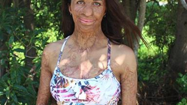 """""""The sound of his cry filled the room – he was perfect!"""" Turia Pitt's VERY DETAILED account of her birth"""