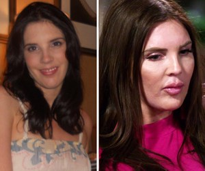 Inside Tracey Jewel's drastic plastic surgery transformation