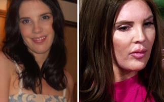 Tracey Jewel Married At First Sight plastic surgery