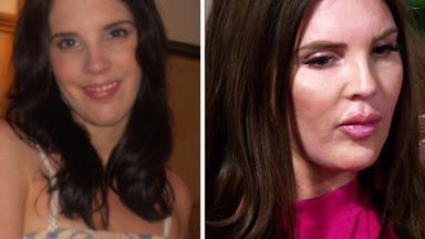 MAFS contestant Tracey Jewel's drastic plastic surgery transformation