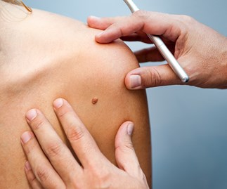 New online tool can measure your melanoma risk