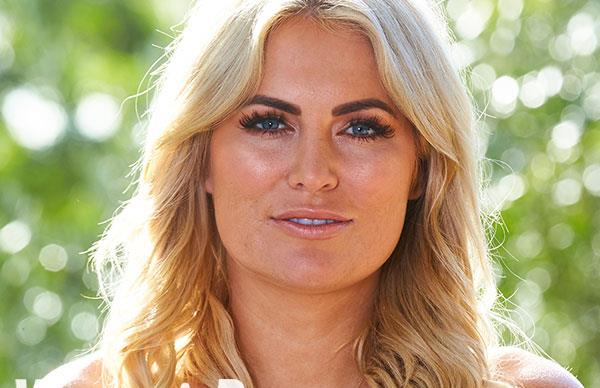 Keira Maguire reveals: My ducklips have GONE!