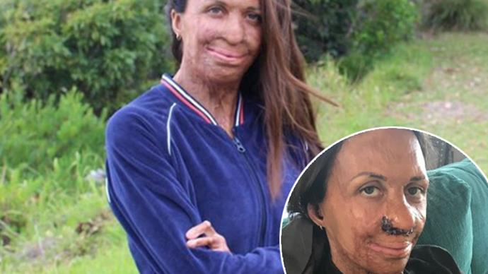Turia Pitt reveals she's recovering from a nose reconstruction surgery with new selfie