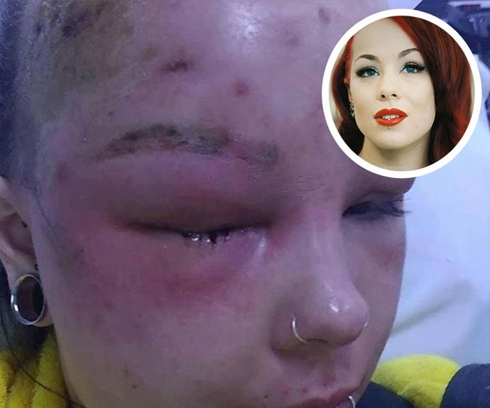 Young woman suffers irreversible damage after a routine body wax causes a severe skin infection