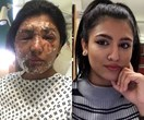 Model attacked with acid on her 21st birthday shows her amazing recovery one year on