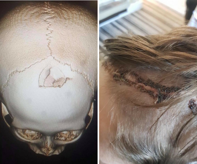 Images of skull xray and boys head stitche dup after bike accident
