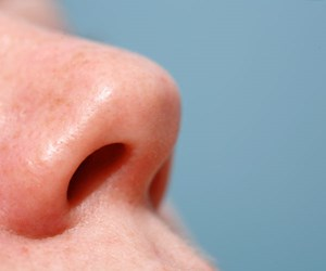 Real life: Help! My nose is rotting away!